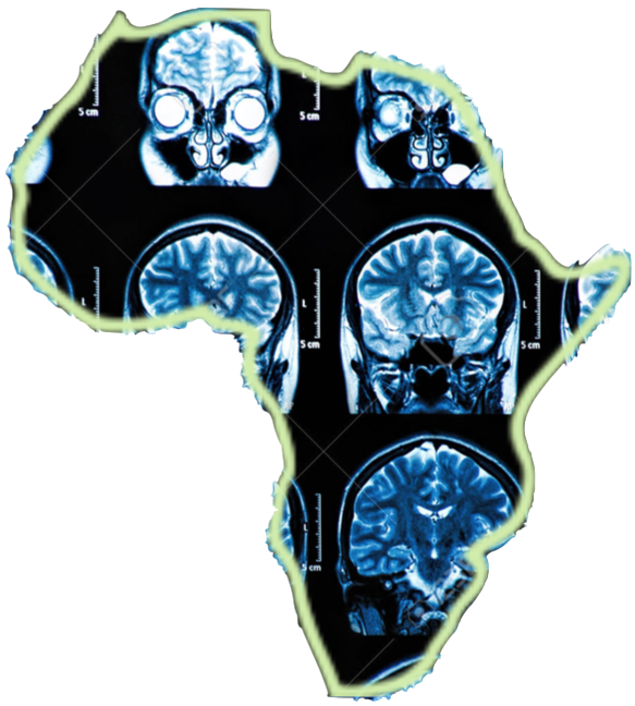 Did You Know African brains are helping African Brains?